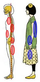 下関市の整骨院しんしも整骨院では姿勢の矯正と正しい姿勢の指導を行っています。体幹が使えていない姿勢では太りやすくなります。