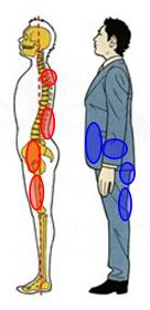 下関市の整骨院しんしも整骨院では姿勢の矯正と正しい姿勢の指導を行っています。腰が反りすぎて腰痛の原因に!
