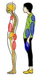 下関市の整骨院しんしも整骨院では姿勢の矯正と正しい姿勢の指導を行っています。猫背にならないよう気をつけましょう。